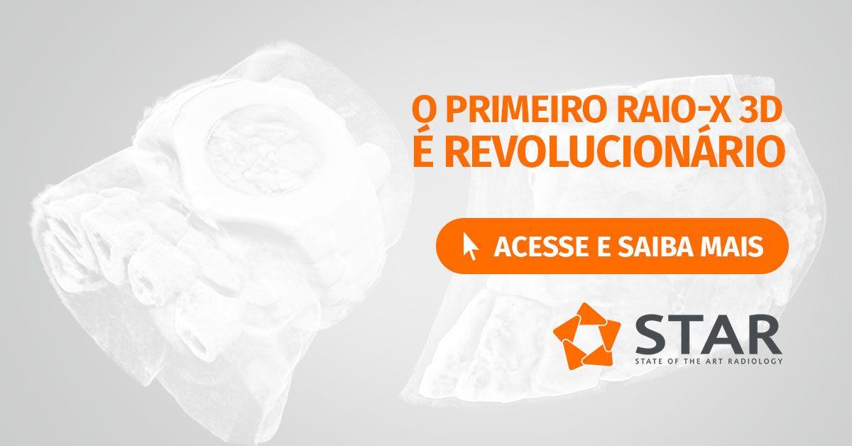 O primeiro Raio-X 3D é Revolucionário | STAR Telerradiologia 3