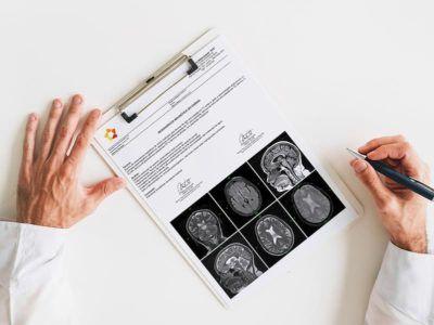 Elaboração de laudos médicos - Reduzir o Tempo de Entrega de Laudos em um serviço de Radiologia